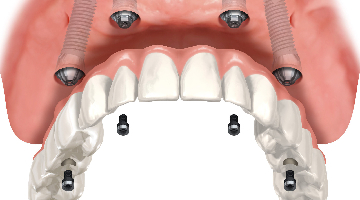 all on 4 dental implants in Aurora